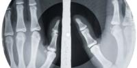 Bone Music_Aufnahme einer Bone Music Platte (c) X-Ray Audio Project